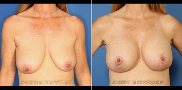 Breast Lift - patient before and after picture front view