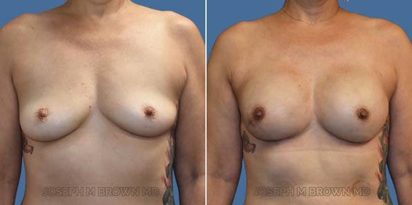 Breast Reconstruction - patient before and after picture front view