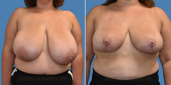 Breast Reduction - patient before and after picture front view