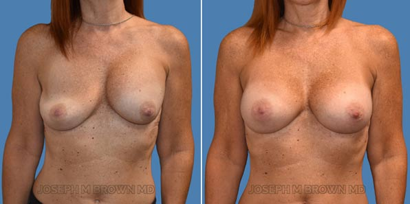 Breast implant revision - patient before and after picture front view
