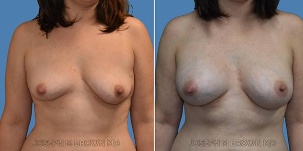 Breast Asymmetry - patient before and after picture front view