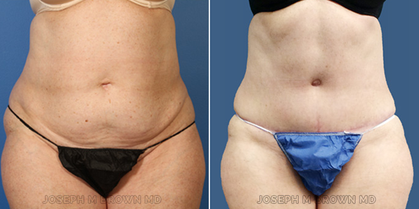 Mini Tummy Tuck - patient before and after picture front view