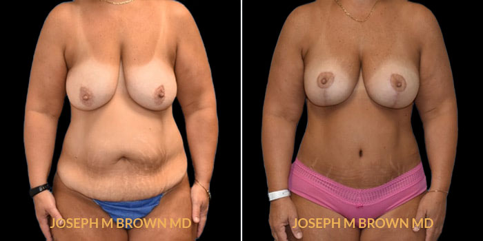 Patient 01 Front Side View Mommy Makeover Tampa Aesthetic & Plastic Surgery