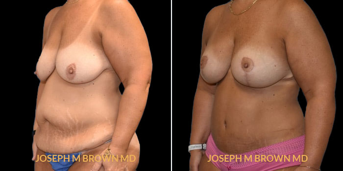 Patient 01 3/4th Left Side View Mommy Makeover Tampa Aesthetic & Plastic Surgery