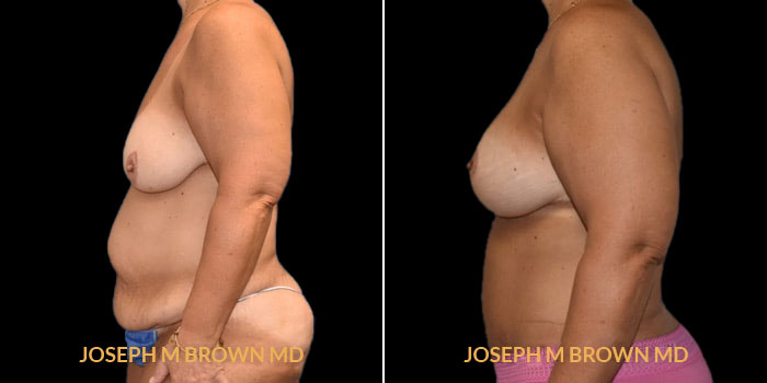 Patient 01 Left Side View Mommy Makeover Tampa Aesthetic & Plastic Surgery