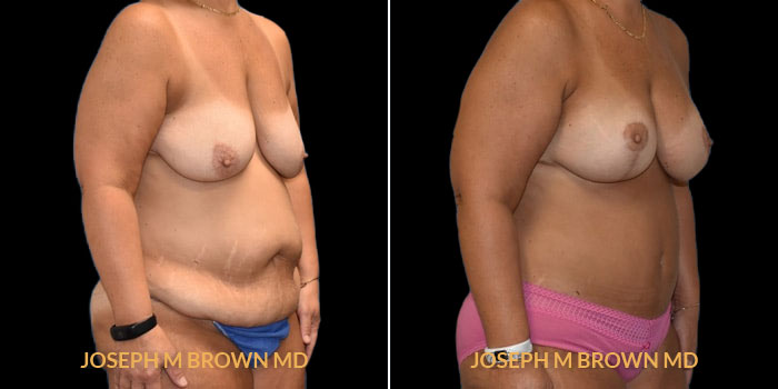 Patient 01 3/4th Right Side View Mommy Makeover Tampa Aesthetic & Plastic Surgery