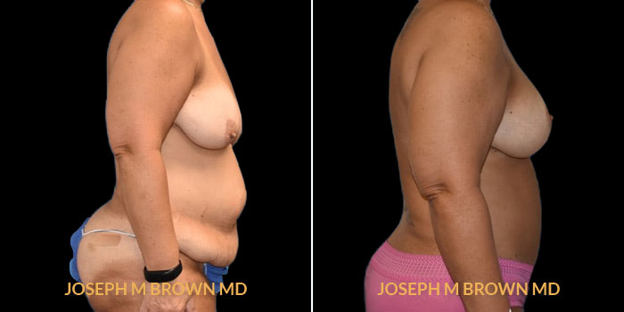Patient 01 Right Side View Mommy Makeover Tampa Aesthetic & Plastic Surgery