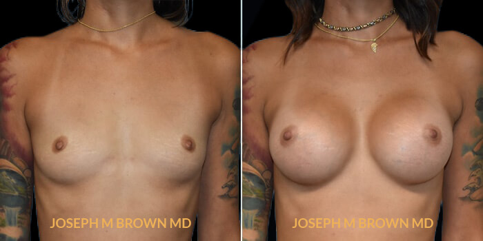 Patient 08 Front Side View Breast Augmentation Tampa Aesthetic & Plastic Surgery