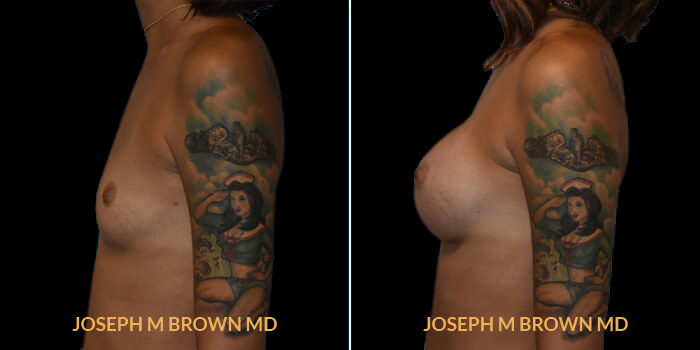 Patient 08 Left Side View Breast Augmentation Tampa Aesthetic & Plastic Surgery
