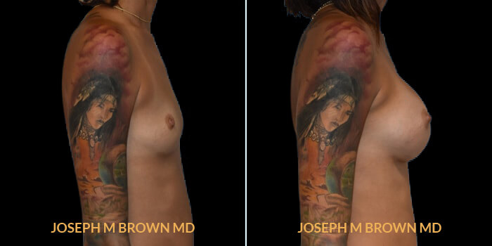 Patient 08 Right Side View Breast Augmentation Tampa Aesthetic & Plastic Surgery
