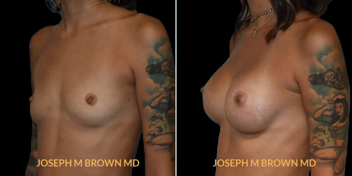 Patient 08 3/4th Left Side View Breast Augmentation Tampa Aesthetic & Plastic Surgery