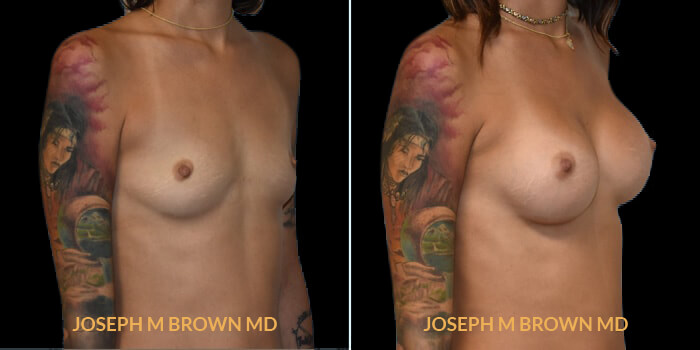 Patient 08 3/4th Right Side View Breast Augmentation Tampa Aesthetic & Plastic Surgery
