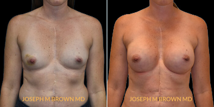 Patient 07 Front Side View Breast Reconstruction Tampa Aesthetic & Plastic Surgery