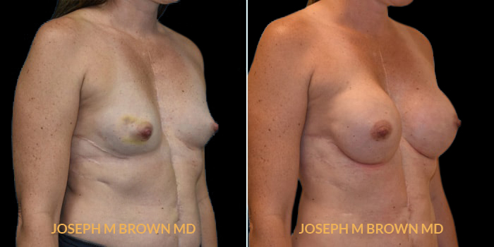 Patient 07 3/4th Right Side View Breast Reconstruction Tampa Aesthetic & Plastic Surgery