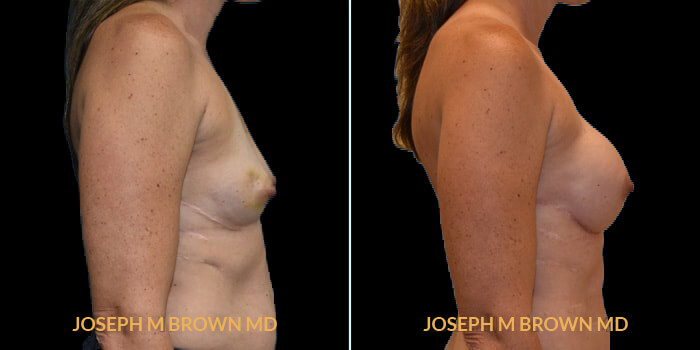 Patient 07 Right Side View Breast Reconstruction Tampa Aesthetic & Plastic Surgery