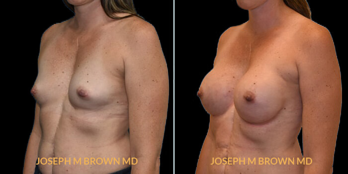 Patient 07 3/4th Left Side View Breast Reconstruction Tampa Aesthetic & Plastic Surgery
