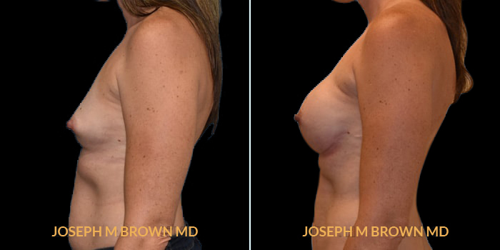 Patient 07 Left Side View Breast Reconstruction Tampa Aesthetic & Plastic Surgery
