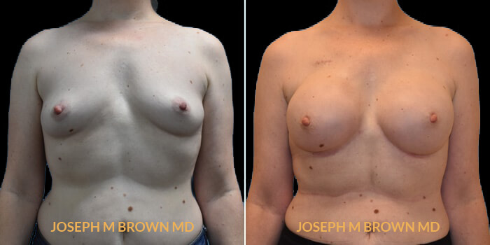 Patient 06 Front Side View Breast Reconstruction Tampa Aesthetic & Plastic Surgery