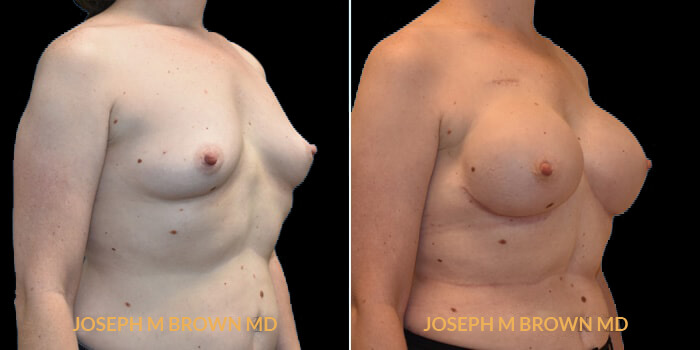 Patient 06 3/4th Right Side View Breast Reconstruction Tampa Aesthetic & Plastic Surgery