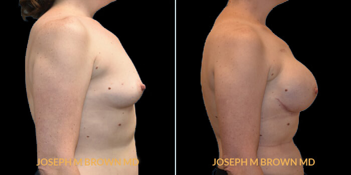 Patient 06 Right Side View Breast Reconstruction Tampa Aesthetic & Plastic Surgery