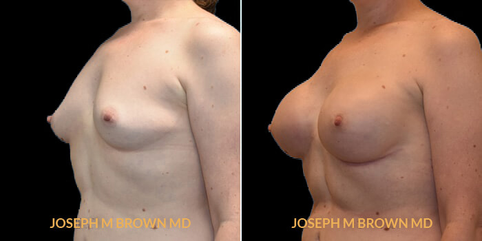 Patient 06 3/4th Left Side View Breast Reconstruction Tampa Aesthetic & Plastic Surgery