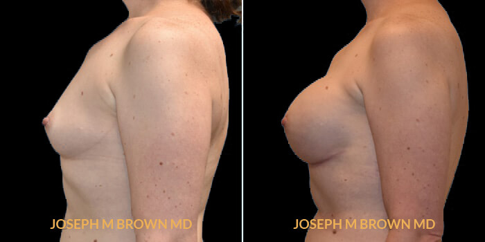 Patient 06 Left Side View Breast Reconstruction Tampa Aesthetic & Plastic Surgery