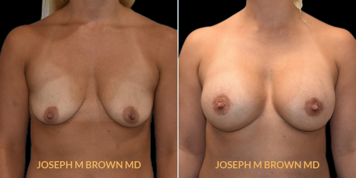 Patient 09 Front Side View Breast Augmentation Tampa Aesthetic & Plastic Surgery
