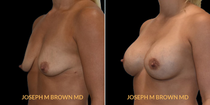 Patient 09 3/4th Left Side View Breast Augmentation Tampa Aesthetic & Plastic Surgery