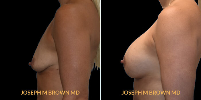 Patient 09 Left Side View Breast Augmentation Tampa Aesthetic & Plastic Surgery