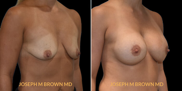 Patient 09 3/4th Right Side View Breast Augmentation Tampa Aesthetic & Plastic Surgery