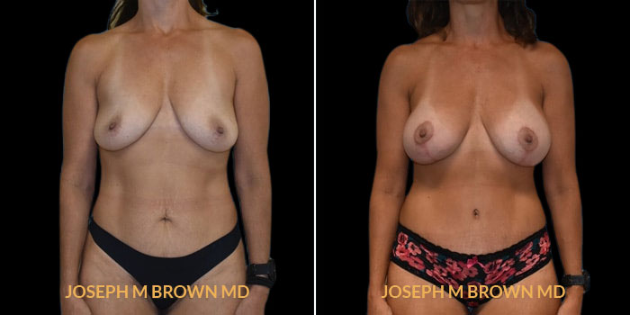 Patient 02 Front Side View Mommy Makeover Tampa Aesthetic & Plastic Surgery