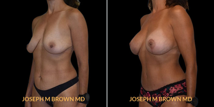 Patient 02 3/4th Left Side View Mommy Makeover Tampa Aesthetic & Plastic Surgery