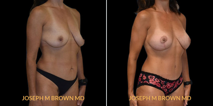 Patient 02 3/4th Right Side View Mommy Makeover Tampa Aesthetic & Plastic Surgery