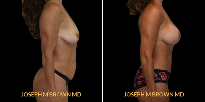 Patient 02 Right Side View Mommy Makeover Tampa Aesthetic & Plastic Surgery