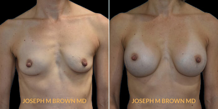 Patient 10 Front Side View Breast Augmentation Tampa Aesthetic & Plastic Surgery