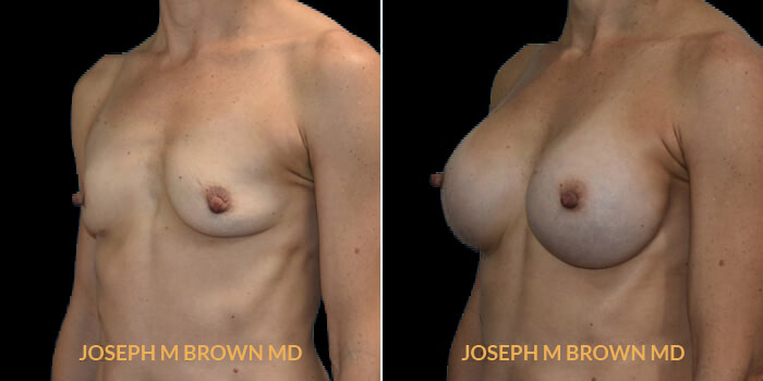 Patient 10 3/4th Left Side View Breast Augmentation Tampa Aesthetic & Plastic Surgery