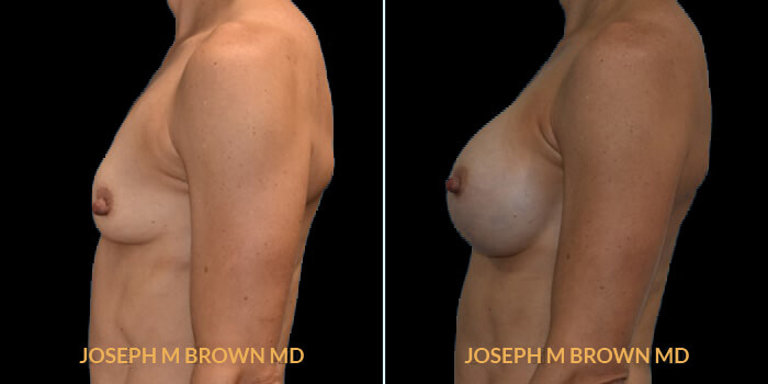 Patient 10 Left Side View Breast Augmentation Tampa Aesthetic & Plastic Surgery