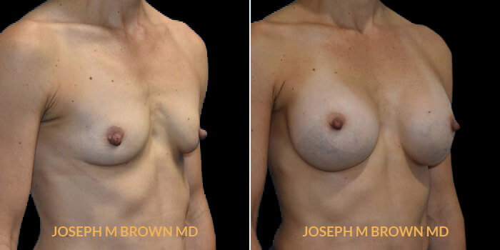 Patient 10 3/4th Right Side View Breast Augmentation Tampa Aesthetic & Plastic Surgery