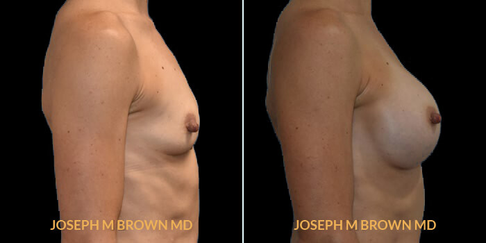 Patient 10 Right Side View Breast Augmentation Tampa Aesthetic & Plastic Surgery