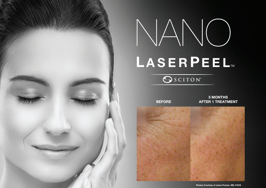 nanolaser peel - stock image of a female model holding hand on face with before and after picture