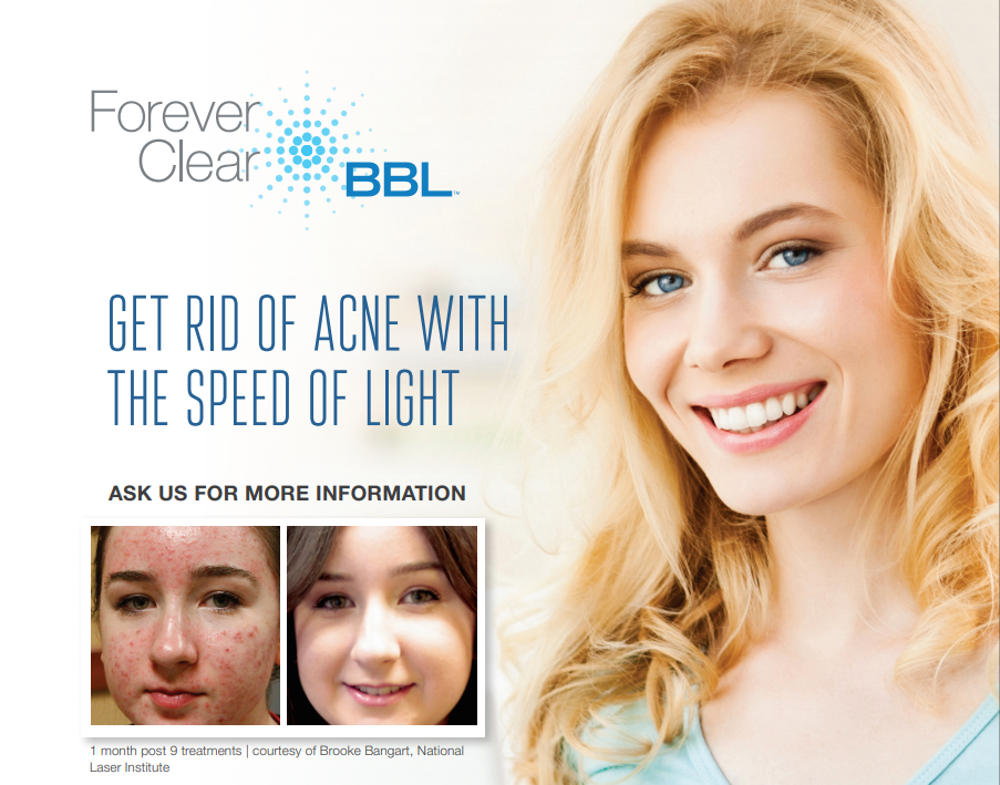 stock image of a female model smilimg - Forever Clear BBL with before and after paitent picture