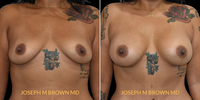 Patient 11 Front Side View Breast Augmentation Tampa Aesthetic & Plastic Surgery
