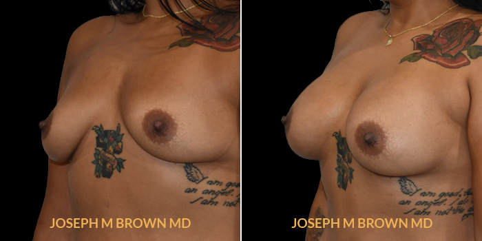 Patient 11 3/4th Left Side View Breast Augmentation Tampa Aesthetic & Plastic Surgery