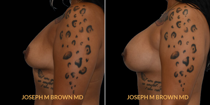 Patient 11 Left Side View Breast Augmentation Tampa Aesthetic & Plastic Surgery