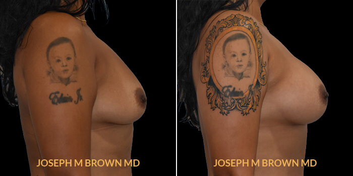 Patient 11 Right Side View Breast Augmentation Tampa Aesthetic & Plastic Surgery