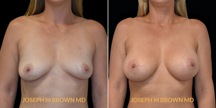 Patient 12 Front Side View Breast Augmentation Tampa Aesthetic & Plastic Surgery