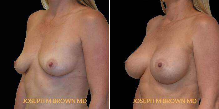 Patient 12 3/4th Left Side View Breast Augmentation Tampa Aesthetic & Plastic Surgery