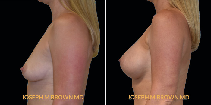 Patient 12 Left Side View Breast Augmentation Tampa Aesthetic & Plastic Surgery