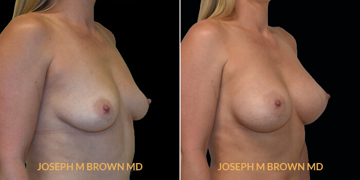 Patient 12 3/4th Right Side View Breast Augmentation Tampa Aesthetic & Plastic Surgery