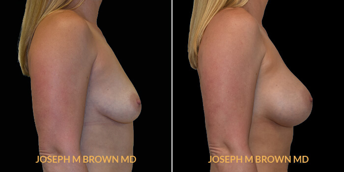 Patient 12 Right Side View Breast Augmentation Tampa Aesthetic & Plastic Surgery